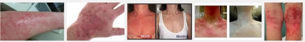 eczema14