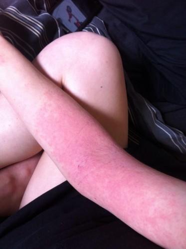 eczema4