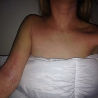 eczema7