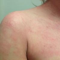 eczema8